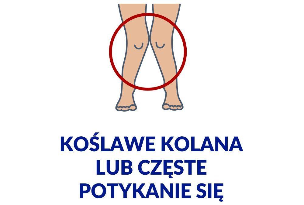 Koślawość iszpotawość kolan – definicja iobjawy