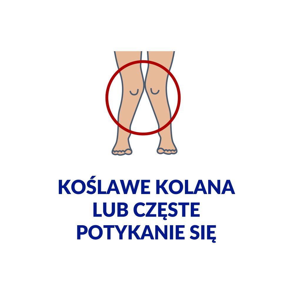 koślawość kolan udzieci